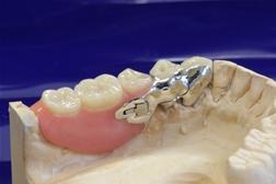 Dentes Zahntechnik Zahntechnik F 252 R 196 Rzte Zahnersatz