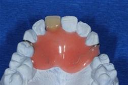 Dentes Zahntechnik / Zahntechnik für Patienten